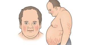 Cushingov sindrom – uzroci, simptomi i liječenje