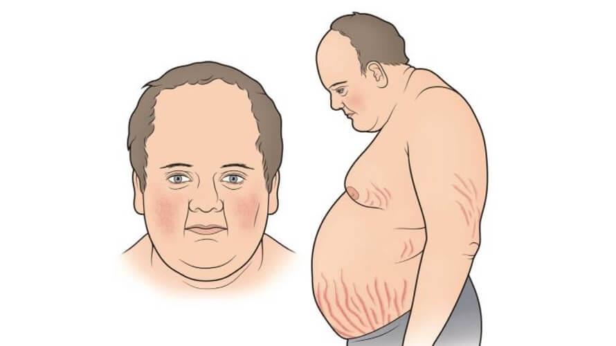 cushingov sindrom