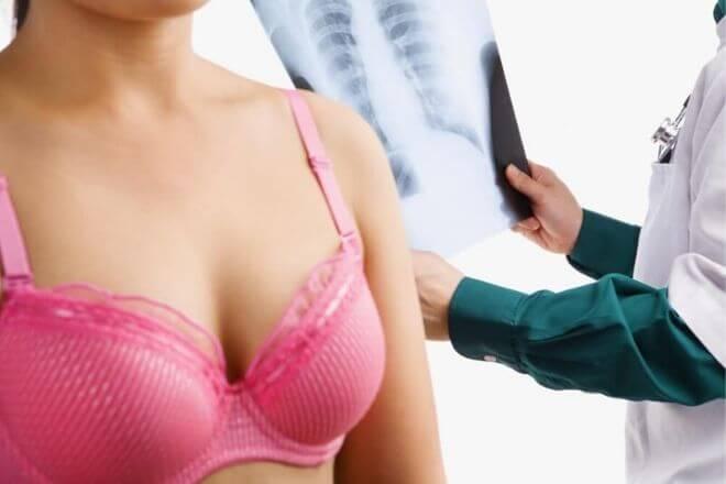 Fibroadenom grudi