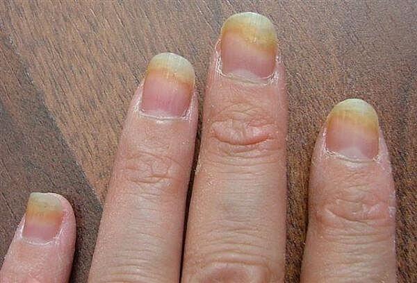 gljivice na rukama