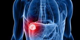 Hemangiom jetre – uzroci, simptomi i liječenje