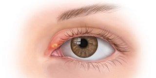 Ječmenac na oku – uzroci, simptomi i liječenje