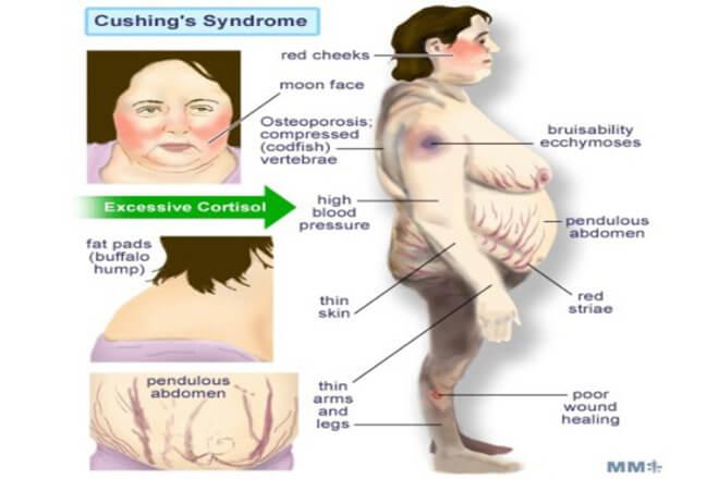 kušingov sindrom
