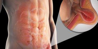 Preponska kila (ingvinalna hernija) – uzroci, simptomi i liječenje
