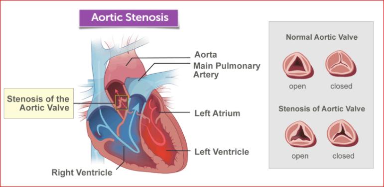 aortalna stenoza