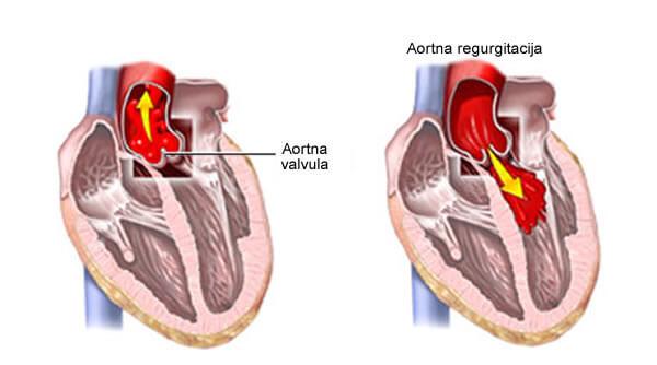 aortna regurgitacija