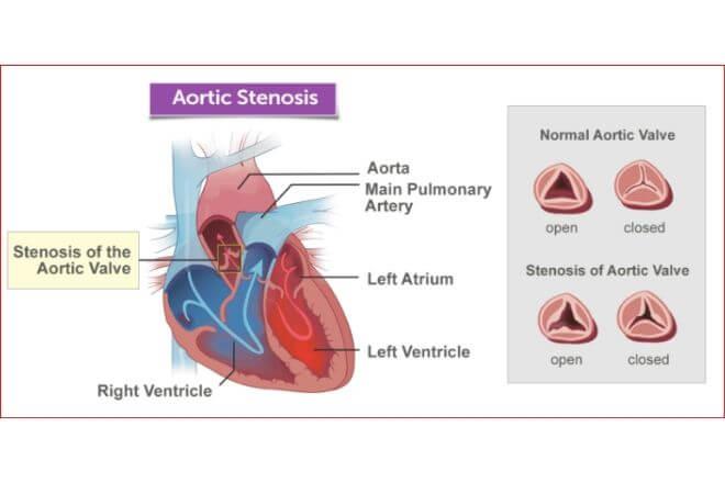 Prikaz aortne stenoze