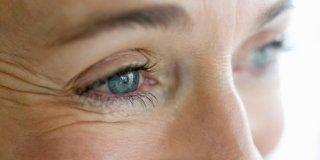 Bore oko očiju – kako ih spriječiti?