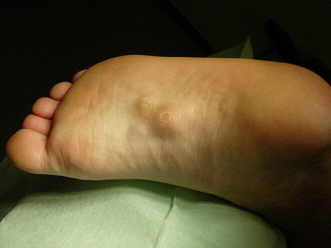 Fibrom na stopalu