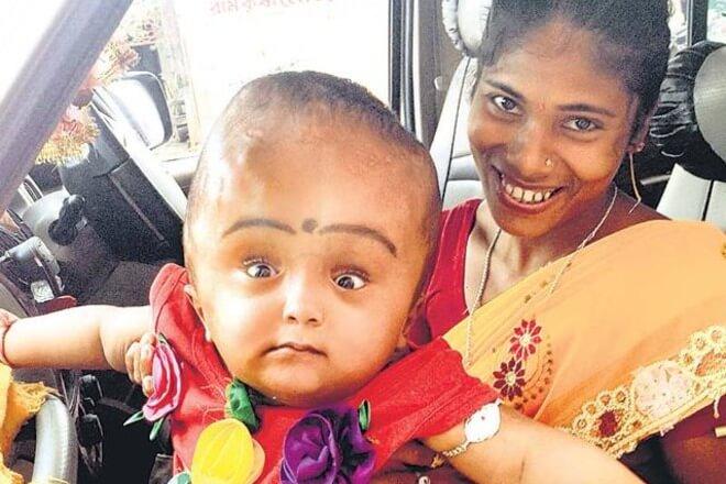 hidrocefalus indija