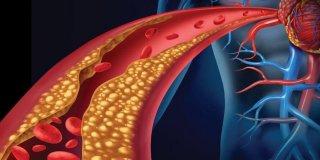 Hiperlipidemija – uzroci, simptomi i liječenje