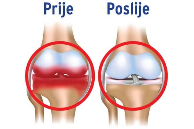 Osteoartritis prije i poslije
