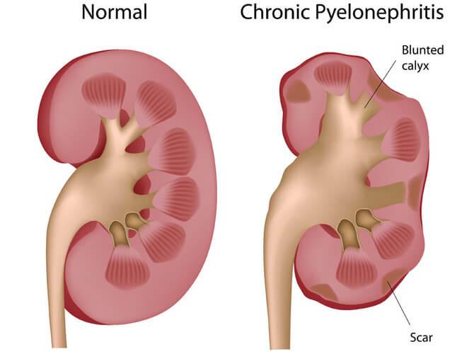 pijelonefritis