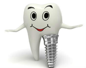 zubni-implantat