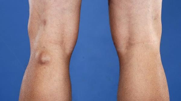 gubitak masnog tkiva s ozljedom koljena