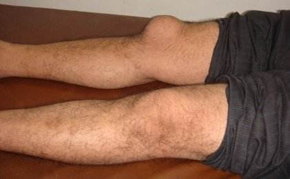 burzitis koljena