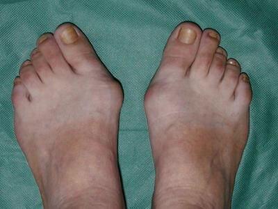 burzitis stopala