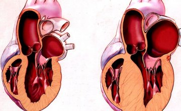 hipertroficna kardiomiopatija