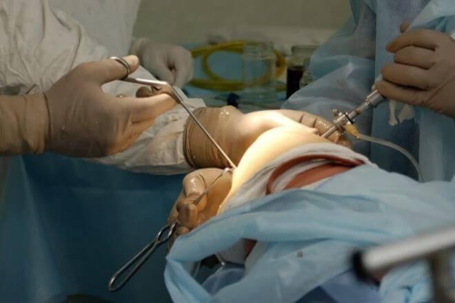 Operacija koljena