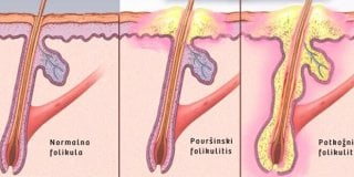 Folikulitis – uzroci, simptomi i liječenje