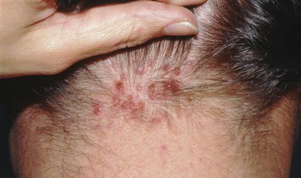 folikulitis na glavi