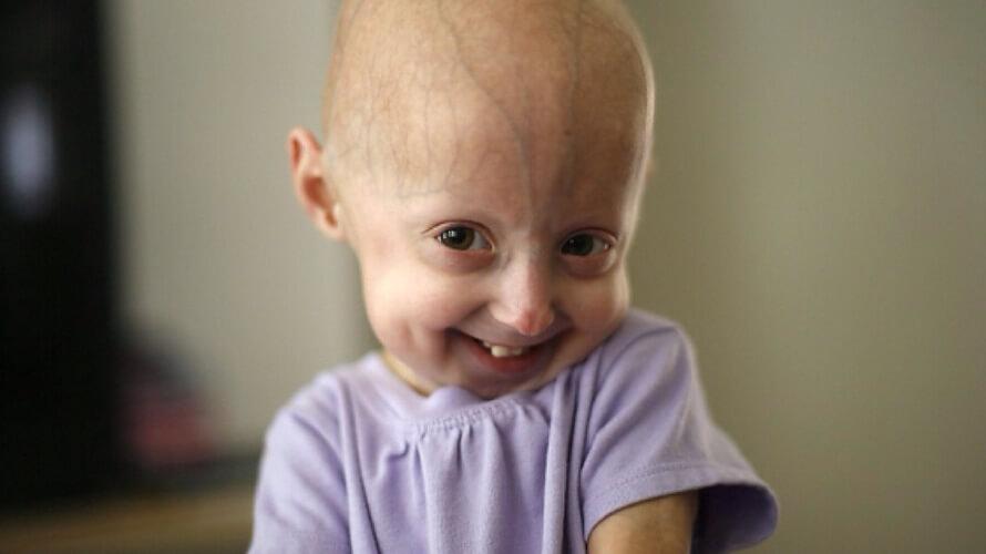 progerija