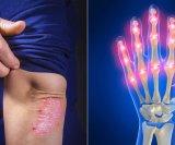 psorijaticni artritis