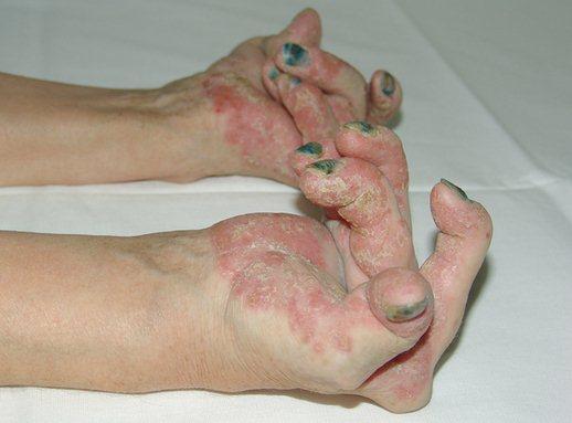 psorijaticni artritis ruke