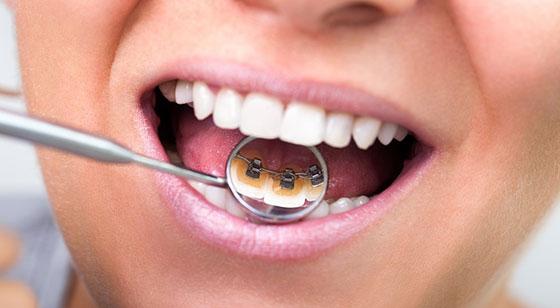inkognito-metoda-ispravljanja-zuba