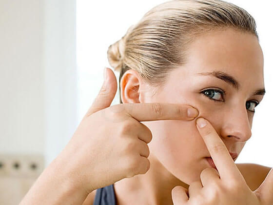 uklonite mitesere s lica