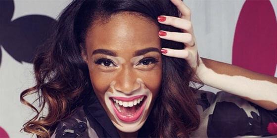 Winnie-Harlow-vitiligo
