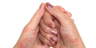 Psorijaza – uzroci, simptomi i liječenje