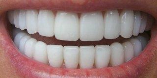 Savjeti za pravilno izbjeljivanje zubi