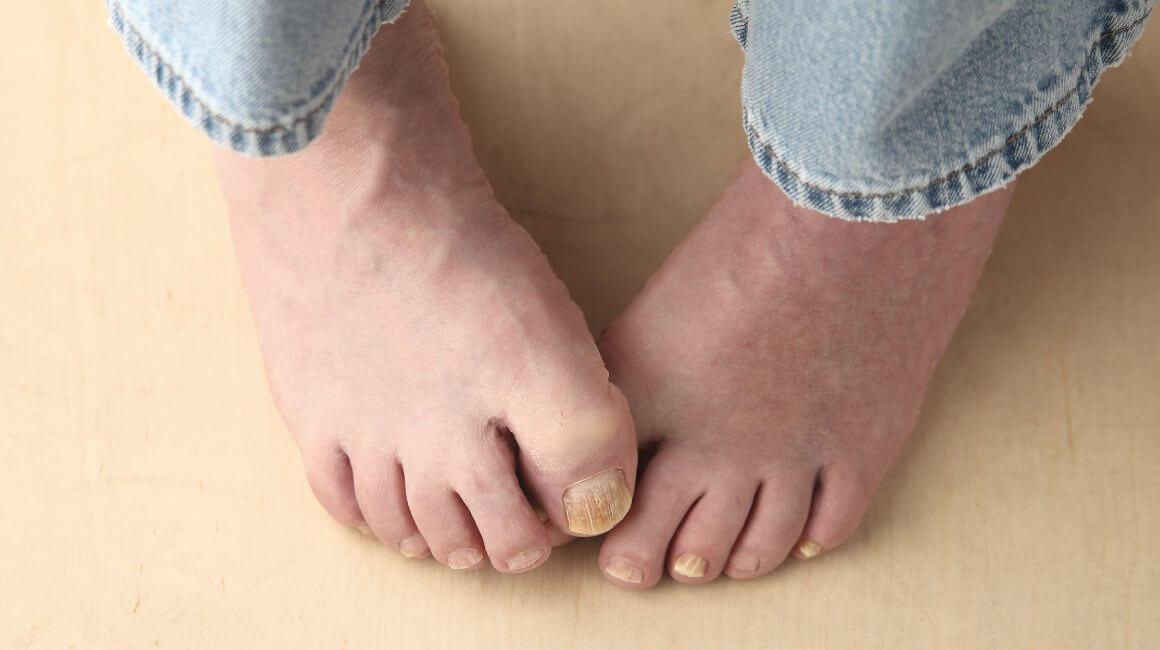 Dijabetička neuropatija