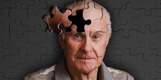 30 posto slučajeva Alzheimerove bolesti uzrokovano životnim stilom