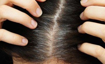 sijeda kosa