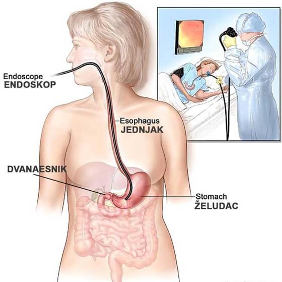 postupak gastroskopije