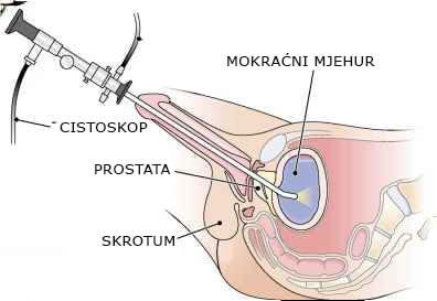 cistoskopija-muskarac