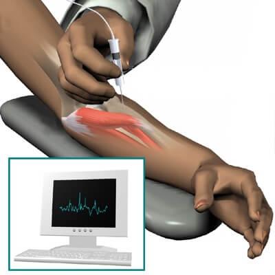 emg-iglicne-elektrode