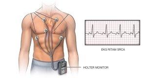 Holter EKG – kako izgleda, kako se pripremiti, cijena