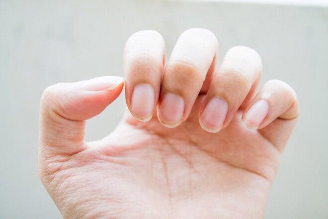 nail-problems