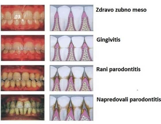 zdravlje-zubno-meso
