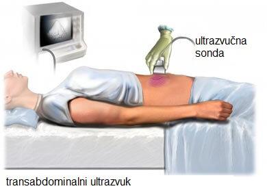abdominalni_ultrazvuk