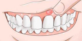 Natečno zubno meso – što znači i kako ga liječiti kod kuće?