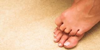 Gljivice na nogama – kako ih spriječiti, liječenje