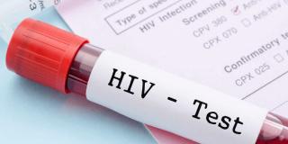 HIV test – kome je potreban, kako izgleda i gdje u Hrvatskoj se provodi