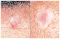 sklerozirajuci_bazocelularni_karcinom