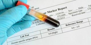 Tumorski biljezi ili markeri – povišene vrijednosti u dijagnozi