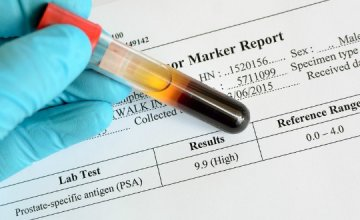 tumorski_biljezi