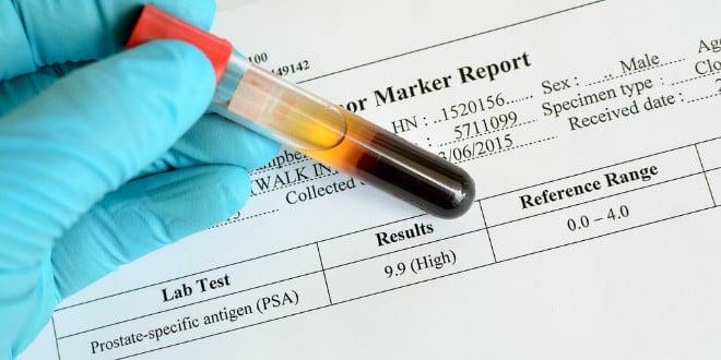 CEA tumor marker